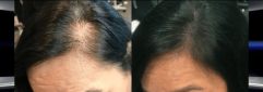 ihsan TEMEL HAİRPİGMENTASYON saç simülasyonu
