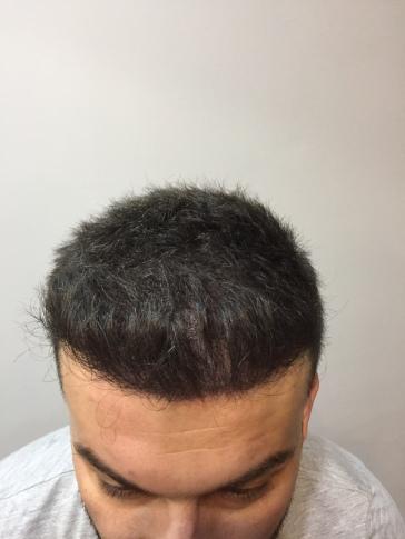 işlem sonrası. önceden saç ekimi yapılmış
