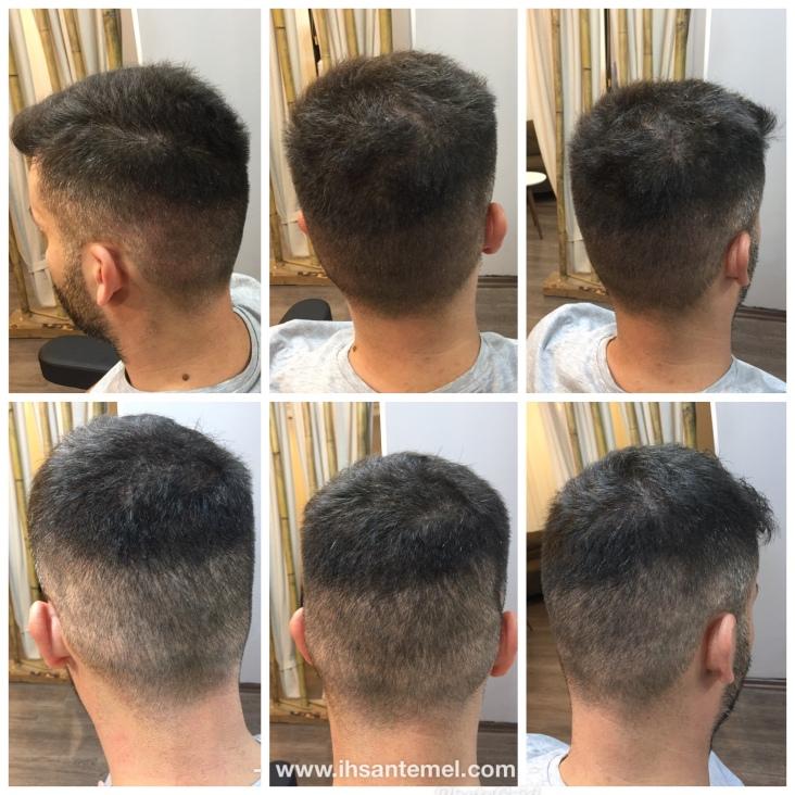 saç ekimi için alınan bölge önce ve sonrası